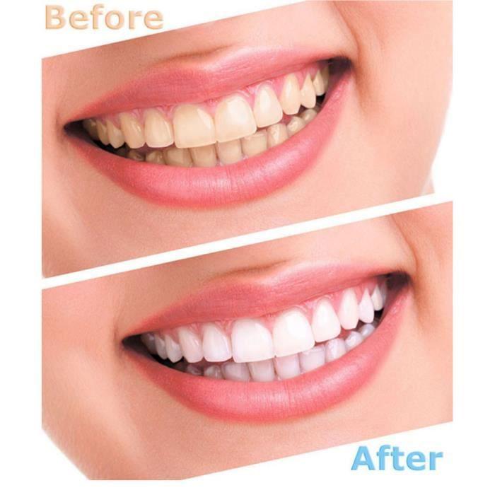 1 Set-10pc équipement dents blanchissant blanchiment peroxyde oral gel Kit Toots