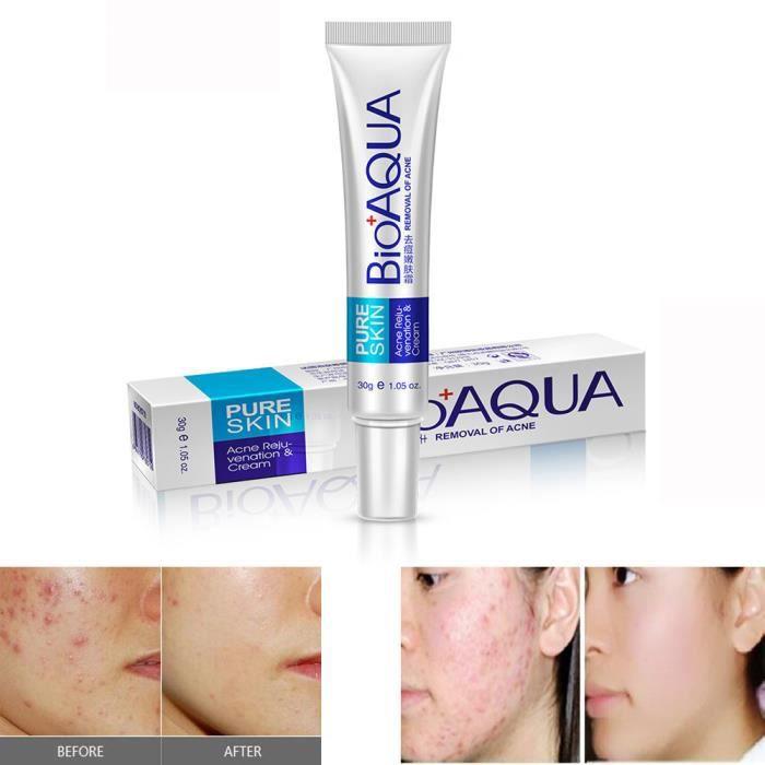 Efficace visage peau soin enlèvement crème taches acné cicatrice marques  traitement GSY70424603 dd17734d0b3